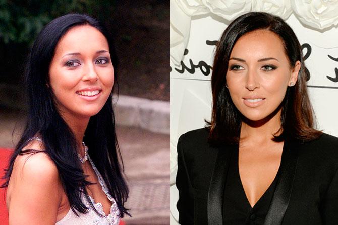 Алсу до и после похудения