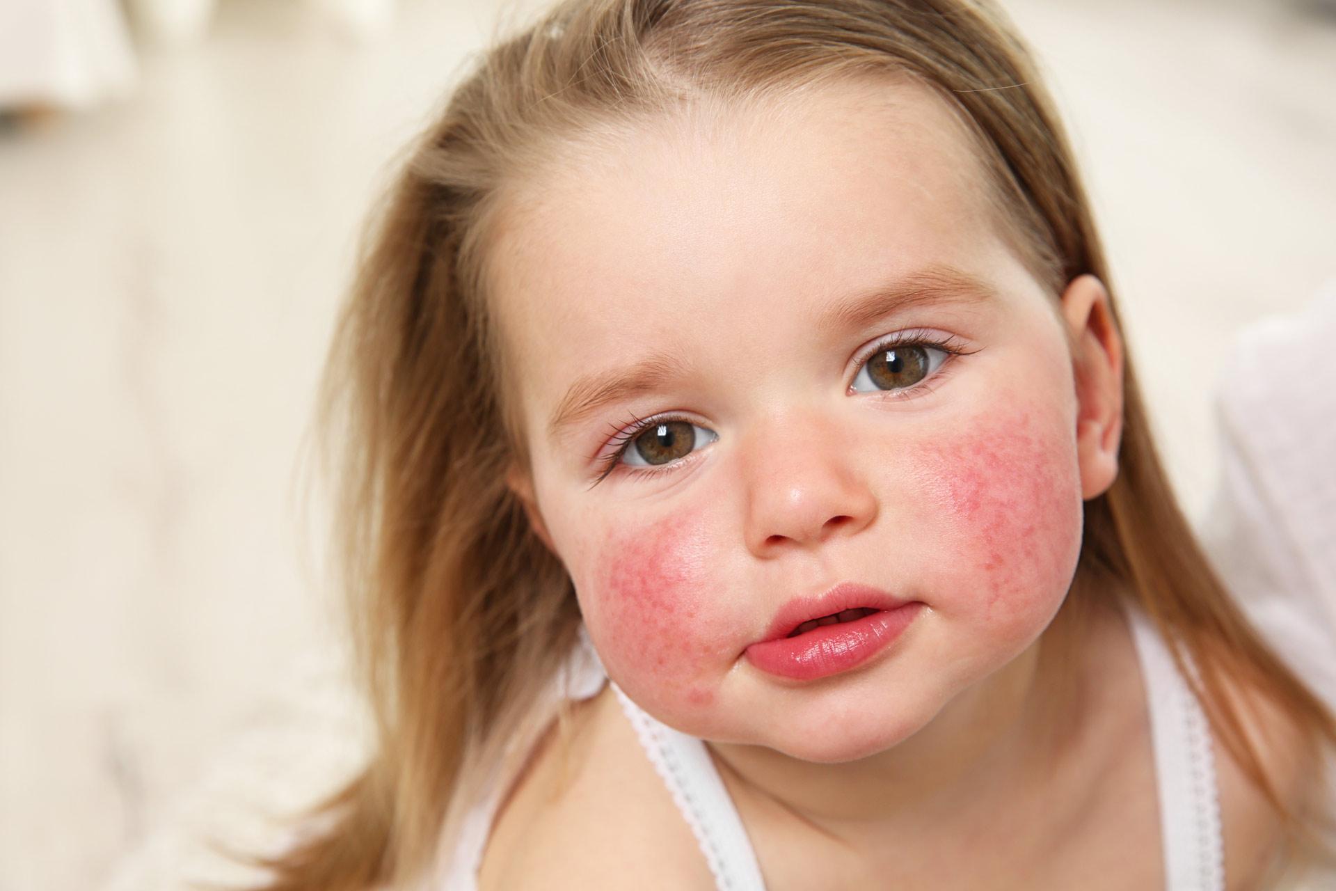 Что делать, если у ребенка проявилась аллергия
